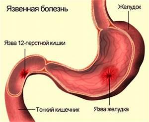 Цирроз печени симптомы и лечение лекарства