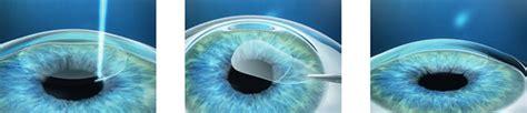 ion laser risques autres techniques d op 233 ration des yeux chirurgie laser yeux opera