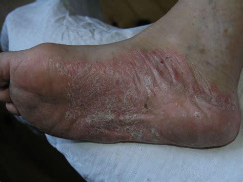 Psoriasis : causes, Triggers