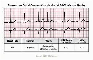 Premature Atrial Contraction | EMS Study Material | Pinterest