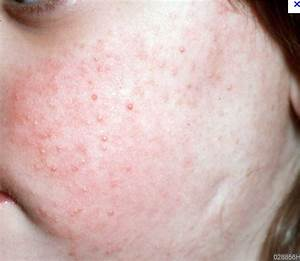 Keratosis on the Face | Dorothee Padraig South West Skin ...