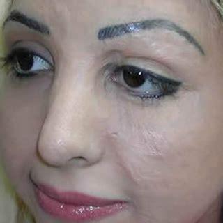 cosmetic tattoos  facial scarring popsugar beauty