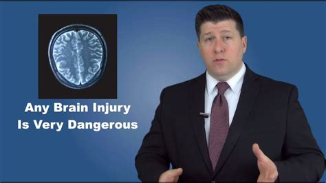 Chicago Brain Injury Attorneys - What YOU Need To Know If ...