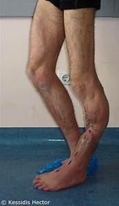 Post-traumatic Complications  Deformations