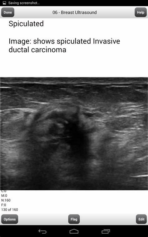 amazoncom ardms breast ultrasound flashcards  ardms