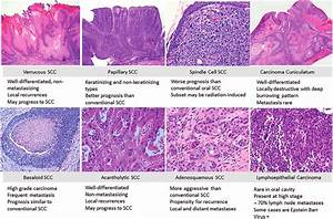 Oral Cavity Histologic Subtypes Of Squamous Cell Carcinoma