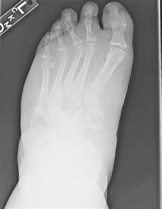 Anteriorposterior Foot View Demonstrated Diffuse Tarsal