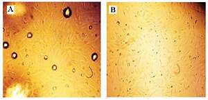 Isolated Adscs With Enzymatic Method From Lipoaspirate