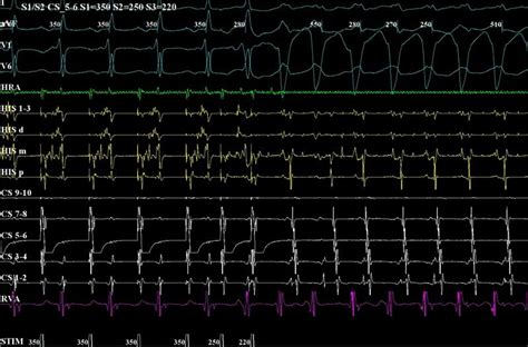 tests procedures childrens heart center golisano