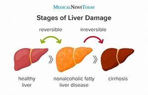 Fatty Liver Disease  Symptoms  Causes  Risks  And Treatment