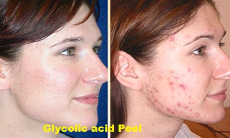 Benefits Of Glycolic Acid For Skin  World Wide. Nashville Alarm Companies Irs Amended Return. Rentdebt Automated Collections. Graduate Programs In Political Science. Different Types Of Photography Careers. Commercial Security Gate Amazon Private Cloud. Assisted Living Green Bay Hearing Test Pitch. Best Hotel In Shanghai Brewing Science Degree. Who Founded The Internet Pass Through Payment