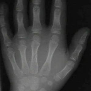 Wheeless' Textbook of Orthopaedics