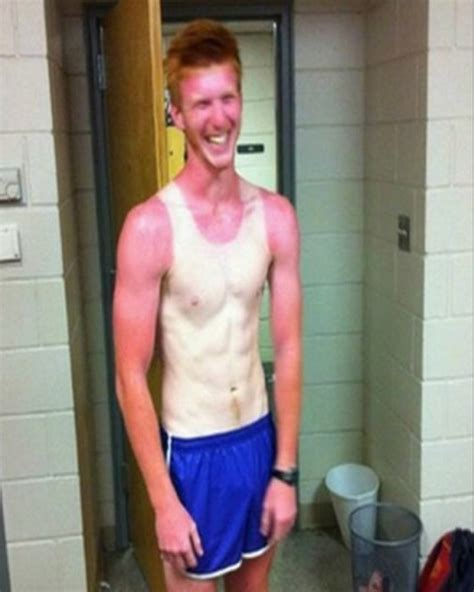 Sunburn From Tanning Bed by The 12 Worst Sunburns In History
