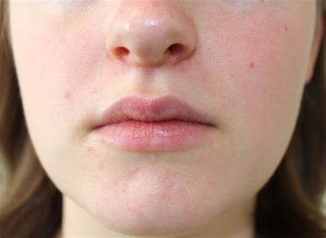 periorale dermatitis wikipedia