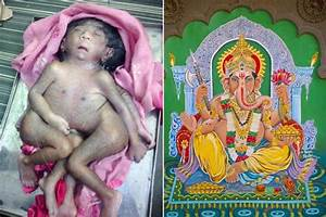 Baby born with eight limbs worshipped by thousands as ...