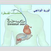 transjugular-liver-biopsy