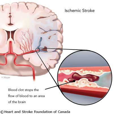ischemic stoke interactive health