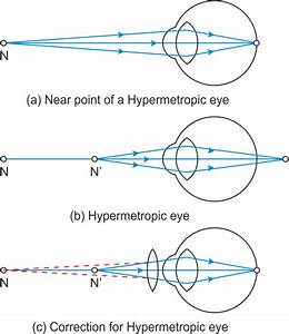 What Are The Causes Of Presbyopia Draw Labeled Diagram Of A Lens Used For The Correction Of This