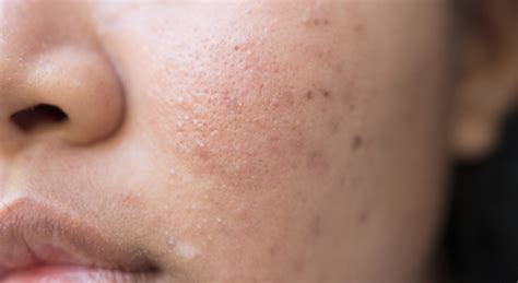 mattress topper nodular acne understand treat and get rid of it today
