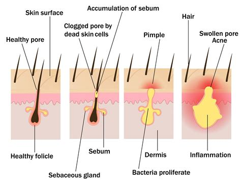 what causes acne and what factors contribute to acne worse county natural medicine