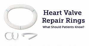 Mitral Valve Repair Rings