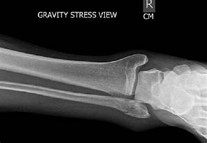 Gravity Stress View With Widening Of Medial Clear Space