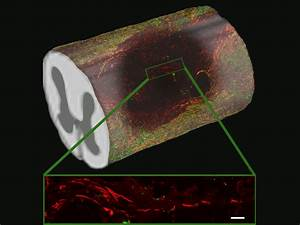 Taking Shape  New Aligned Hydrogel Tubes Guide Spinal
