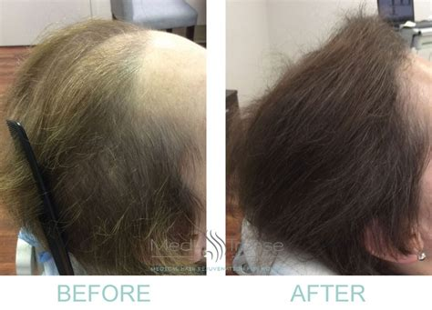 PRP Before and After Photos | Medi Tresse Boston