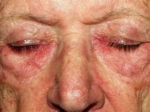Dermapixel: Allegro ma non heliotroppo Dermatomyositis