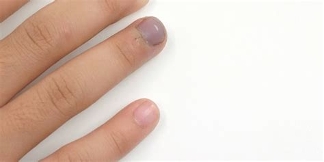 If you follow this critical tip! Bruised Fingernail: What to Do When Your Nail Cracks or ...
