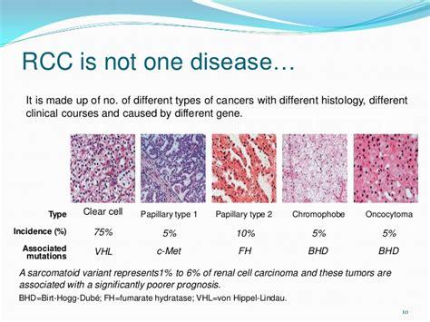 renal tumors renal cell carcinoma dr vandana
