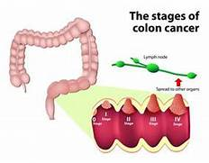 Colorectal Cancer  Cau...Colon Cancer Stages And Treatment