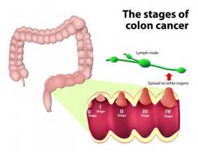 MNT (printer-friendly) - Colorectal Cancer: Causes, Symptoms and ... Colorectal Cancer