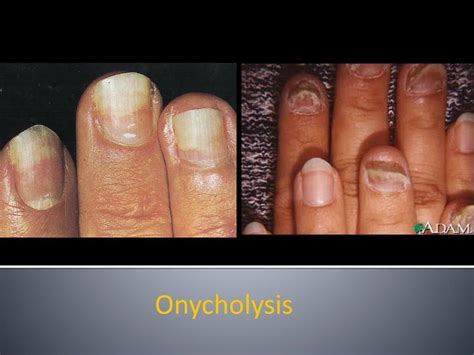 Ppt Nail Disorders Clues To Systemic Disease Powerpoint