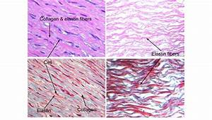Histology Pictures Showing The H U0026e Stain  Up  And Masson U0026 39 S
