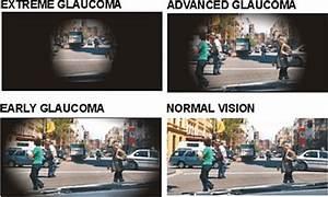 تافلوپروست (TAFLUPROST)  Glaucoma Eyes and Vision
