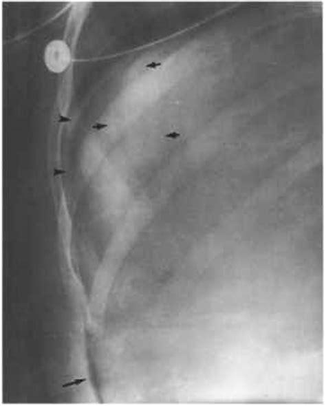 cupola sign radiology cupola sign dynamic radiology barnard health care