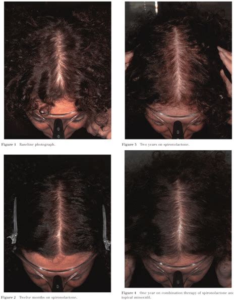Spironolactone For Hair Loss - Featuring 12 Month Study