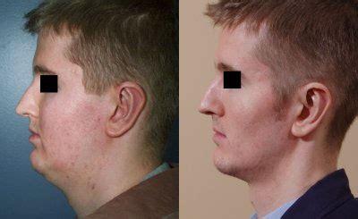 bellevue seattle liposuction liposuction body contouring