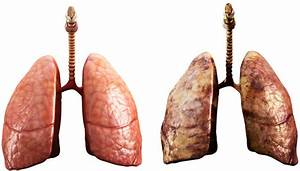 Quit Smoking Calculator: Timeline Benefits, Body Effects ...