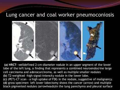 occupational lung diseases radiology