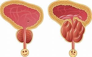 Лидаза при лечение простатита