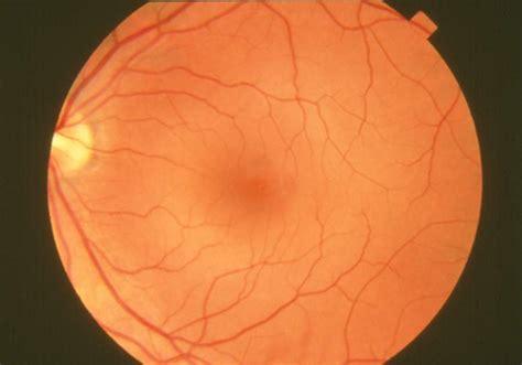 Filefundus Photographnormal Retina Eda06jpg Wikipedia