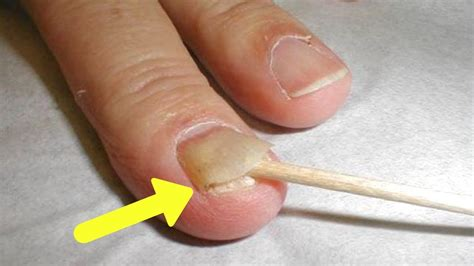 pictures  nail psoriasis nail ftempo