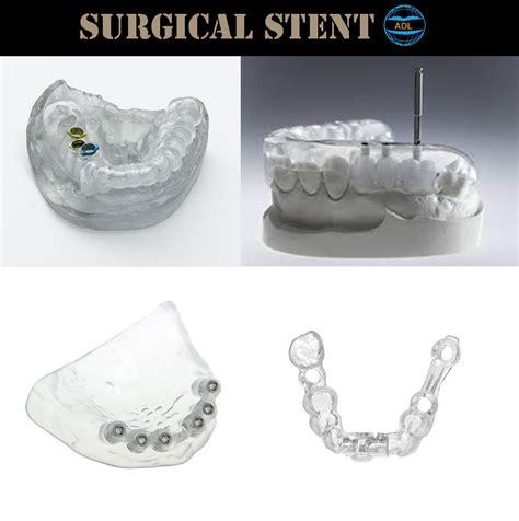 surgical stent advanced dental laboratory