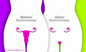 A Hysterectomy Is An Operation To Remove The Uterus  Womb