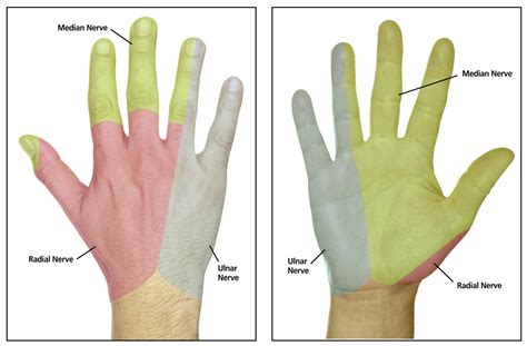 Carpal Tunnel Syndrome Cervical Radiculopathy Three
