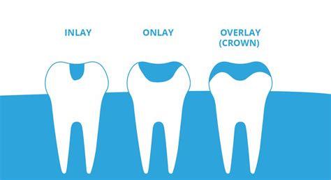Inlays and Onlays   Tacoma Dentistry   32 pearls Tacoma