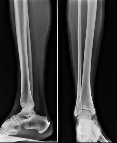 shin splint splints radiopaedia xray case fracture radiology version via