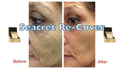 Seacret Recover Before And After Wow Effect!  Youtube